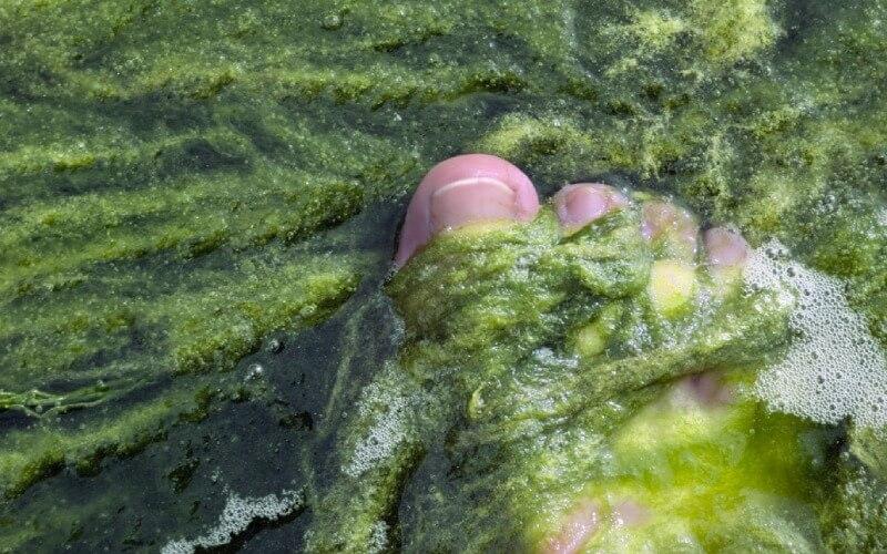 Algi na cellulit.