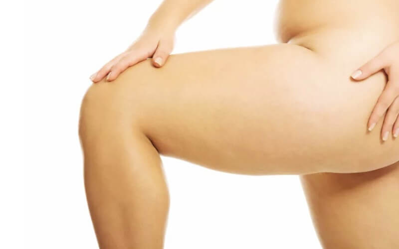 Jak działa derma roller na cellulit
