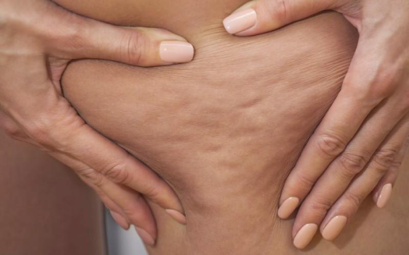 Naturalne sposoby na cellulit.